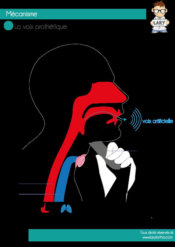 Voix prothétique