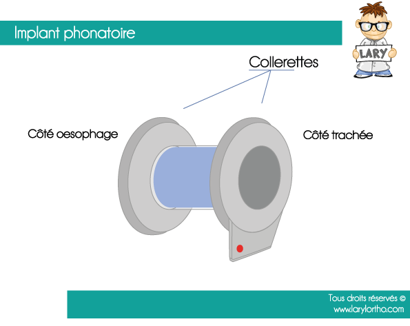 Implant Phonatoire Collerette-patient