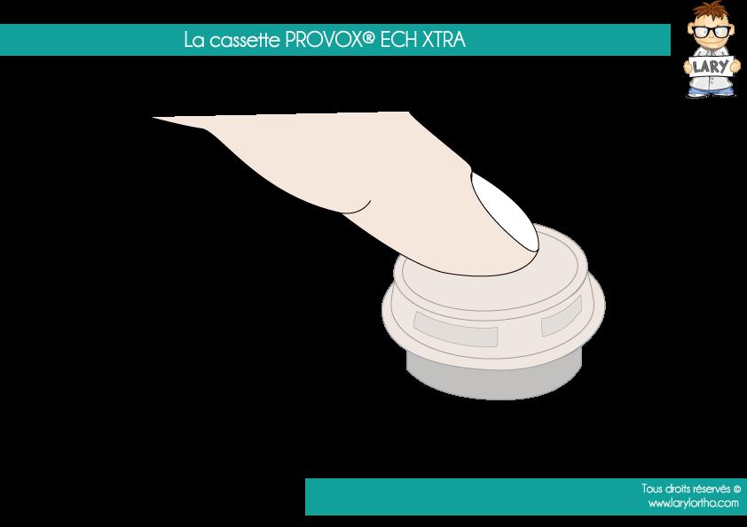 La-cassette-PROVOX-XTRA