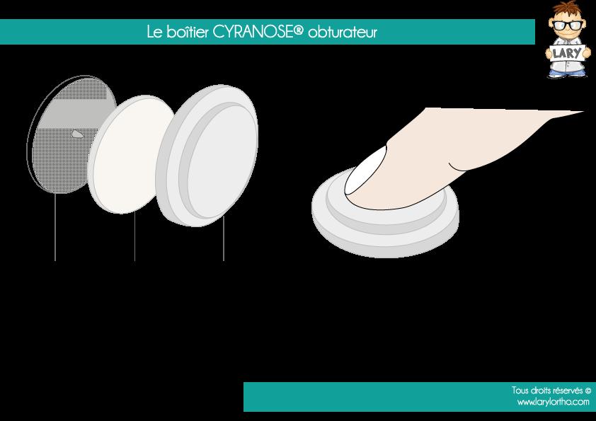 Le-boîtier-CYRANOSE-obturateur
