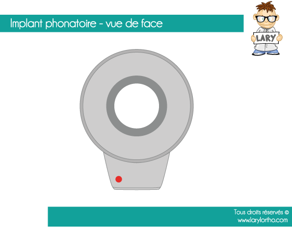 implant-phonatoire-vue-de-face