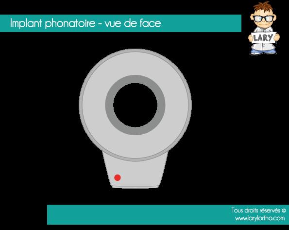 implant-phonatoire-vue-de-face
