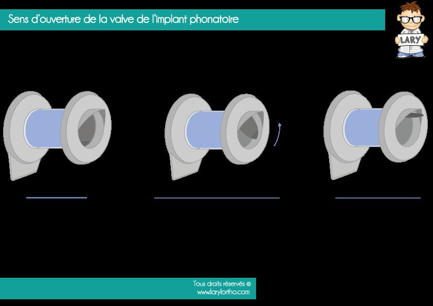 Ouverture de la valve